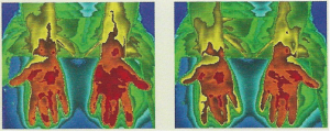 Thermo Image 1