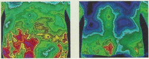 Thermo Image 3